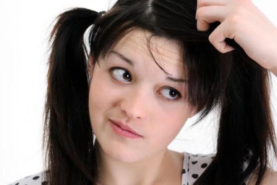 Cuoio capelluto secco e sensibile? Ecco cosa fare!